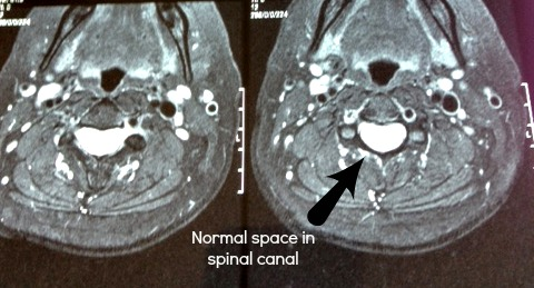 spinal canal,looking down,disc