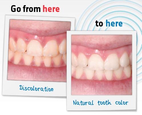 emmident, teeth whitening, ultrasound, toothbrush