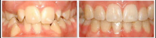 partovi method before and after