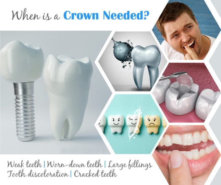 When is a dental crown needed infographic