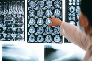 Showing brain scans